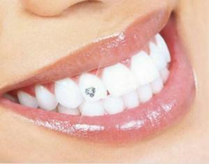 نگین دندان